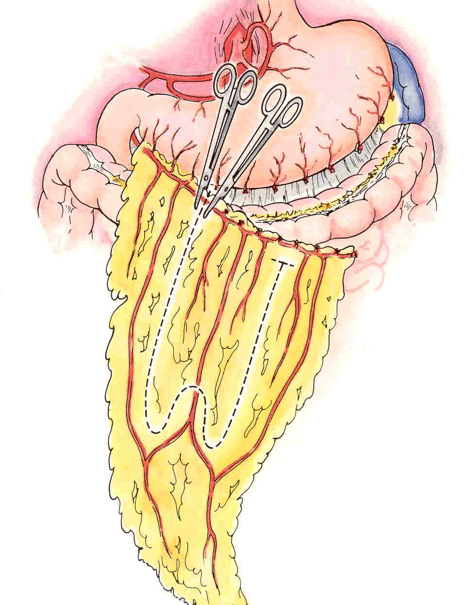 THE OMENTUM MOMENTUM FOR SPINAL CORD INJURY